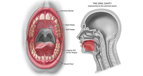 oral_cancer_image